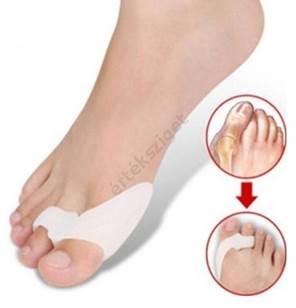 hogyan lehet kezelni a nagy lábujj artrózisát kattan a térdízületek kezelésére