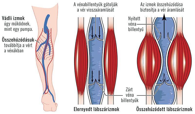 lábfájdalom vénákban vagy ízületekben