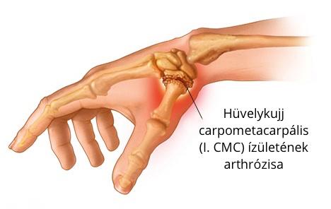 ízületi arthrosis a hüvelykujj