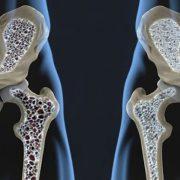 csontritkulás milyen kenőcsök