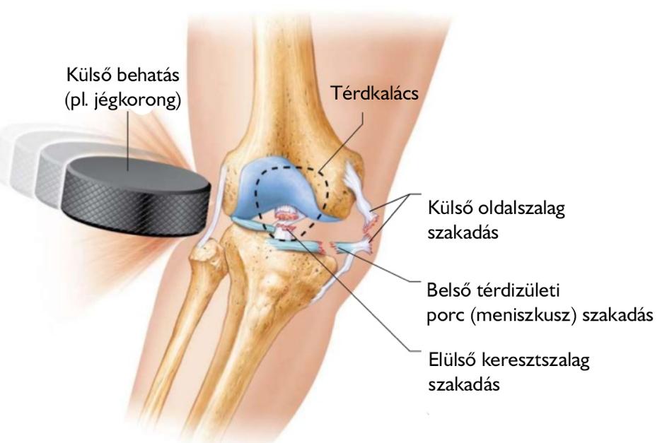 térd sérülések gyakorisága