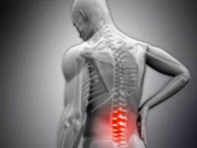 a movalis nem segítette az ízületi fájdalmakat fenék fájdalom a csípőpótlás után