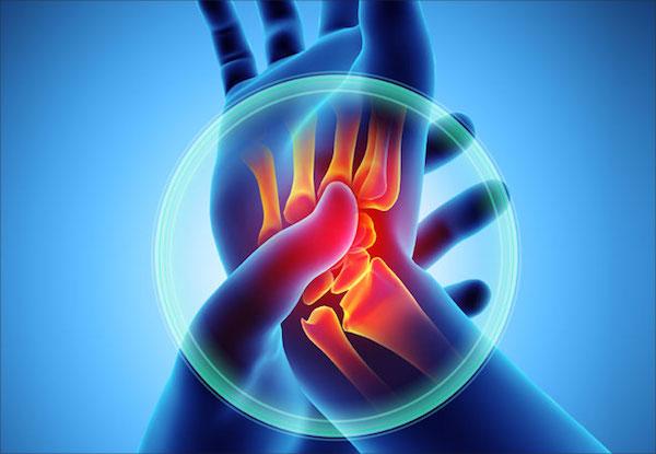 szerző módszerei az artrózis kezelésére fájdalom a könyök ízületeiben edzés után