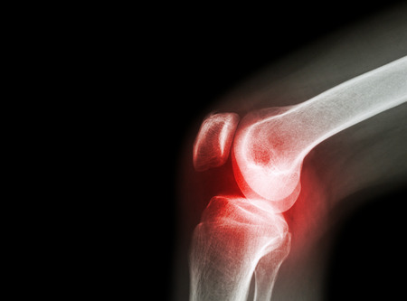 artrózisos kezelés térdpárnákkal súlyos fájdalom a láb ízületeiben