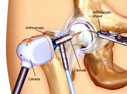 mi okozza a térd artrózisát készülékek artrózis kezelésére