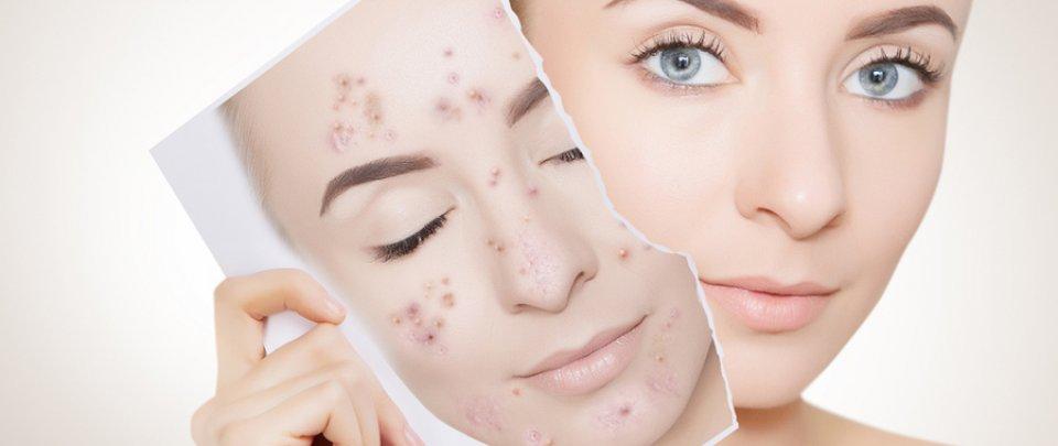 Akne - pattanásos bőr tünetei és kezelése