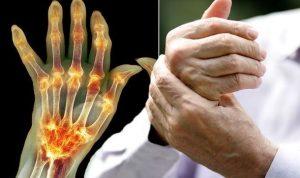 mutatják az együttes kezelést kezelés csípőtörés után