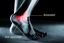 boka duzzanat artritisz