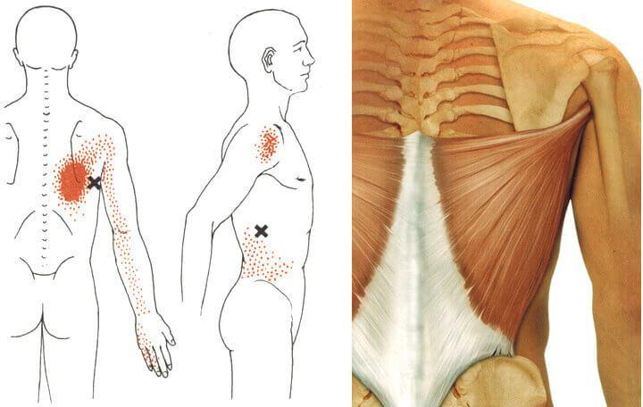 artrózis a vállízületben ozokerit az artrózis kezelésében