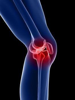 A vállízület artrózisa - a betegség, a tünetek és a hatékony kezelési módok teljes leírása