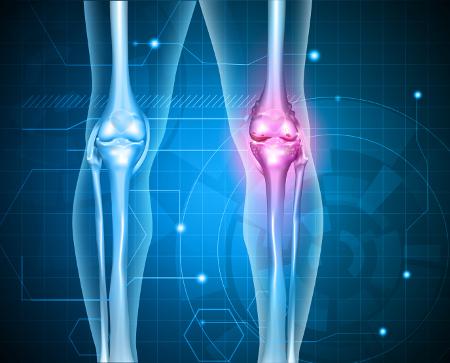a térd kenőcsének artrózisának kezelése