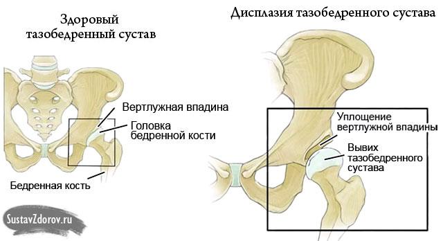 a gyaloglás hasznos a csípőízület artrózisában a lábízület duzzadása