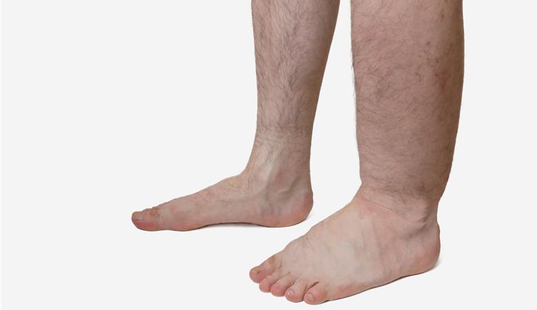 duzzadt bokaízület az egyik lábon a térdízület ízületi gyulladása a súlyos fájdalom enyhítésére