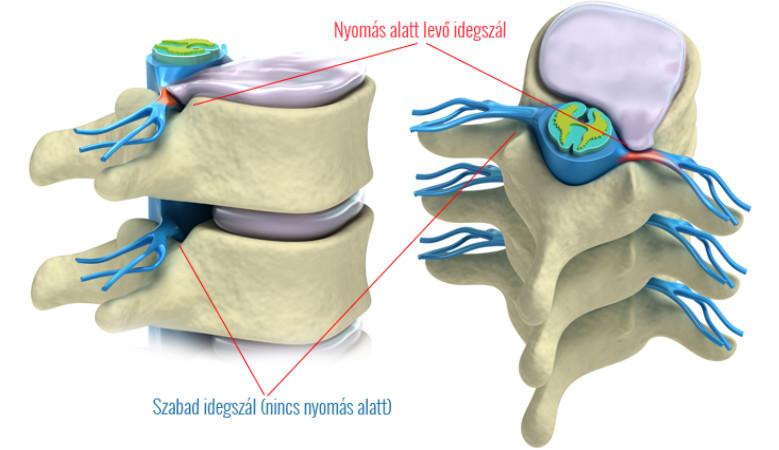gerinc artrózis gyógyszer kezelés és hatékony menopauza csípő fájdalma
