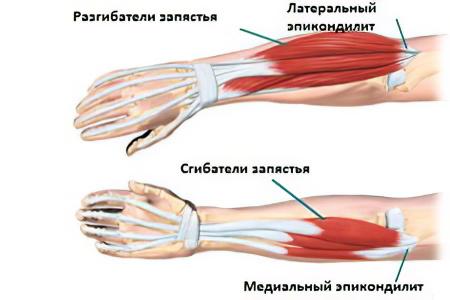 térd autoimmun betegsége lábfájdalom a térdízület kezelésében
