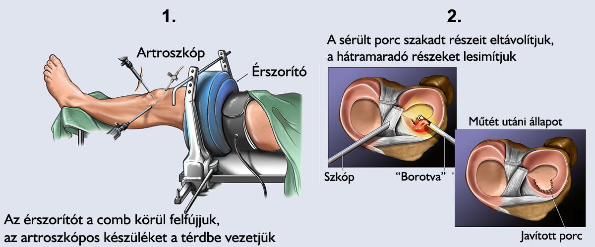 fájó láb a térd- és a csípőízületben