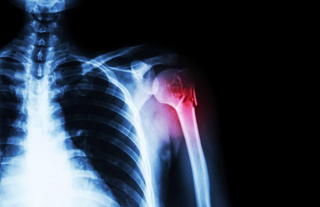 gyógyszer az ízületek és az izmok fájdalmaira csípő fájdalom rosszabb éjjel
