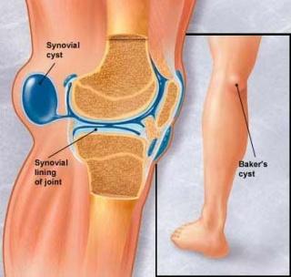 lábfájás a térdben