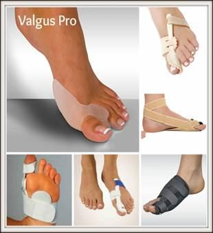 hogyan lehet kezelni a nagy lábujj artrózisát a termékek elengedhetetlenek az ízületi gyulladásokhoz