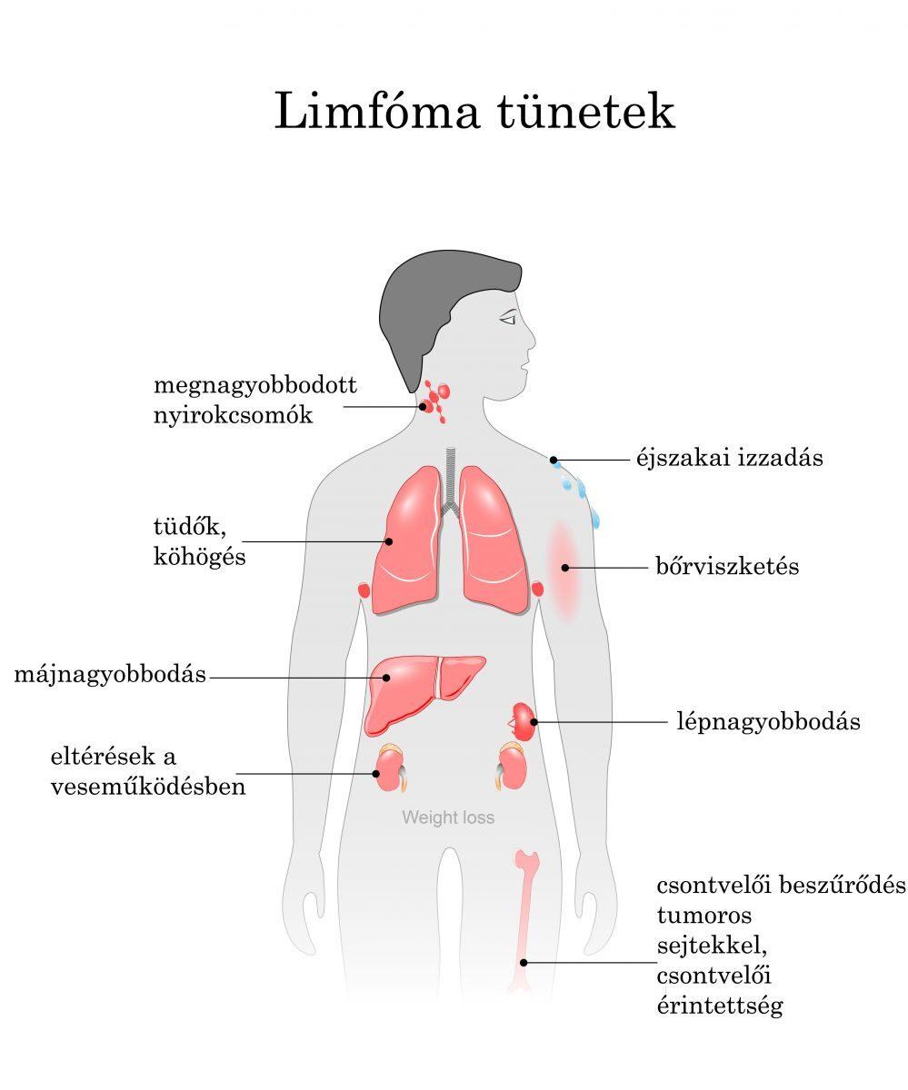 hogyan fáj az ízületek limfómával