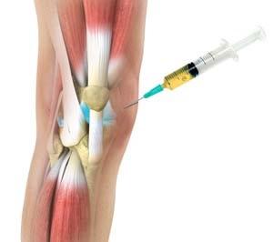 Vállízület osteoarthrosis