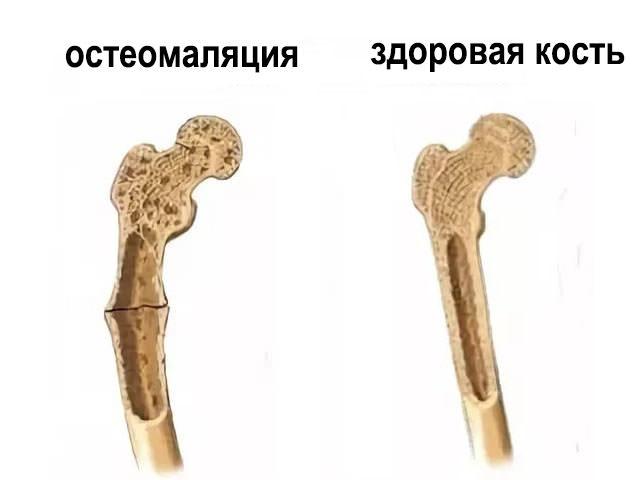 A leggyakoribb kérdések a csonttörésekről