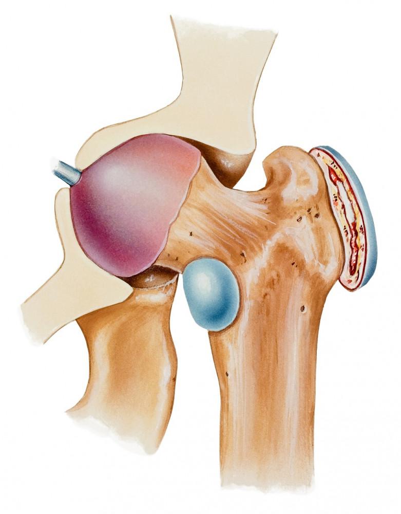 hogyan kezeljük a fájó csípőízületeket