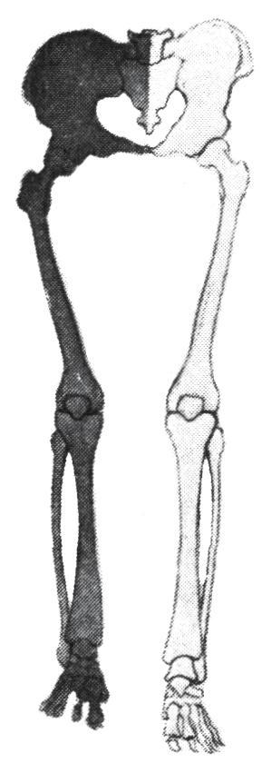 a bokaízületek artrózisa 1 fok