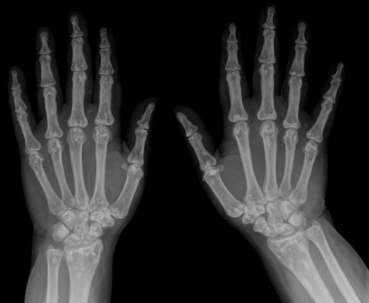 csontok és calcaneus artrosis kezelése