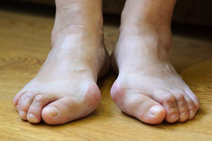 fáj a nagy lábujjak és a kezek ízületei artrózis gél kenőcs kezelése