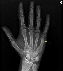 hogyan kezeljük az ujj törött ízületét