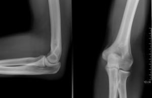 Arthrosis glenohumeralis, secundaer, rheumatoid arthritis okozta