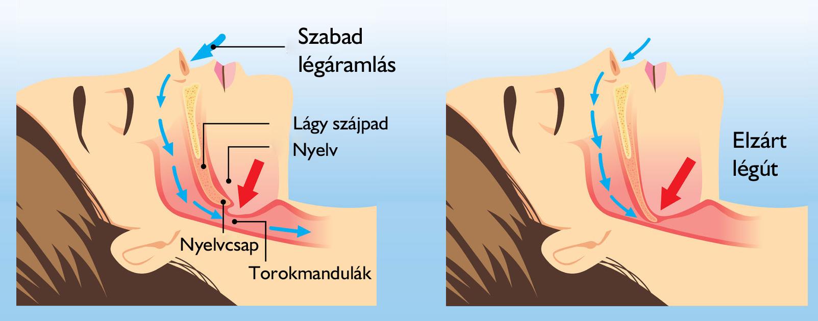 Horkolás műtét, az éjszakai légzéskimaradás-kezelése