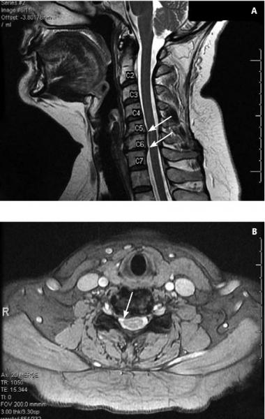 a nyaki osteochondrozis hatékony gyógymódjai