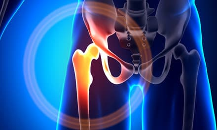 A csípőízület kopásának kezelése - HáziPatika