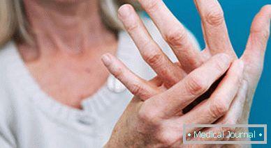 kéz csuklófájdalma körte után)
