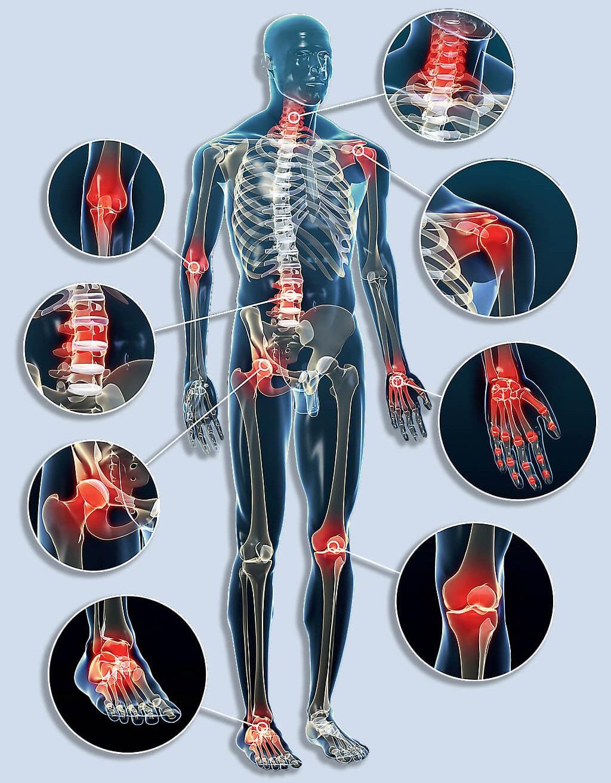 vörös agyag ízületi fájdalmak