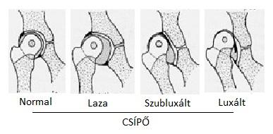 fáj a csípőízület és az alsó has