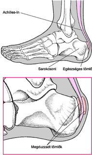 fájdalom a lábak ízületeiben rákkal