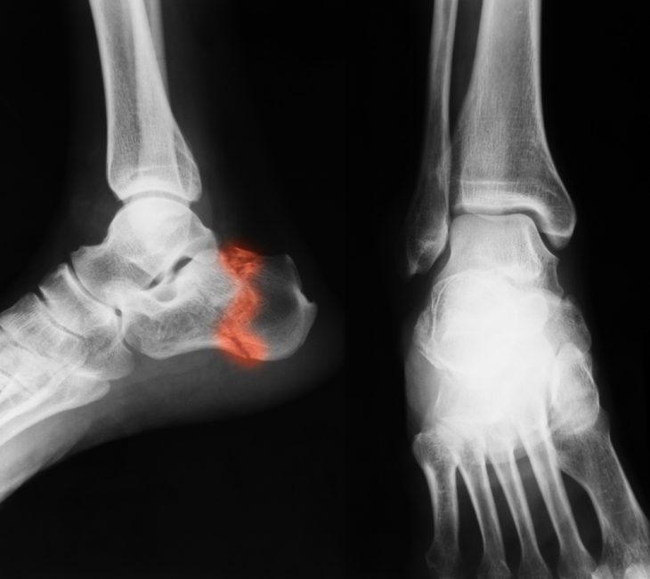 Az alsó végtag ortopédiai betegségei