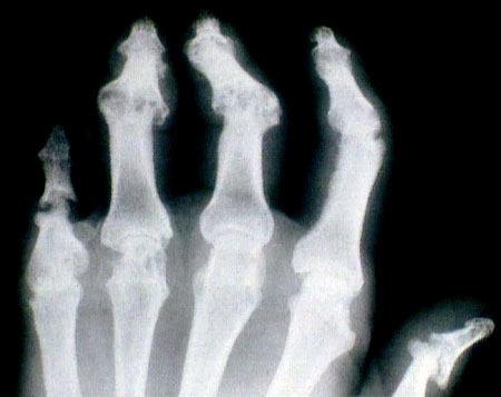 ízületek súlyosbodása, mint kezelésére éles fájdalom a jobb kéz vállízületében
