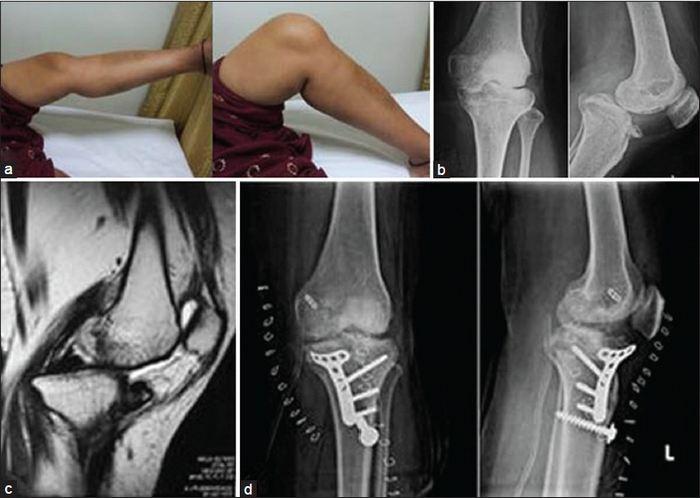 sípcsont ízületi kezelés éles fájdalom a láb ízületében járás közben