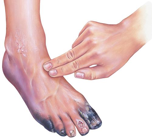 lábfej lábujjai ízületi betegségei