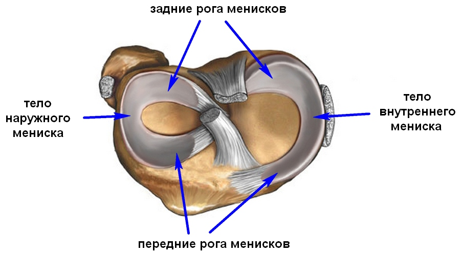 a jobb térdízület medialis meniszkuszának károsodása