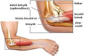 ízületi csontgyulladás az artrózis komplex gyógyszeres kezelése