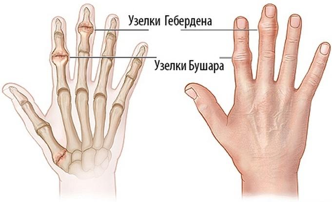 a kézízületek gyakran fájnak