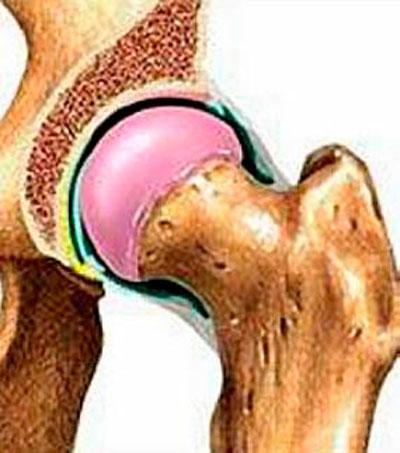 ízületi gyulladás ureaplasmosisból ízületi krém teteje