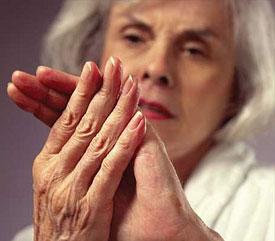 szempír és ízületi fájdalom