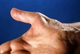 carpal szindróma kezelése aki kezeli a csípőízület szinovitist