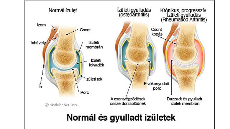 artrózis kezelése teraflex deformáló artrózisos kezelés a kis ízületekben